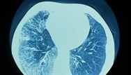 Lung disease in patients with rheumatoid arthritis