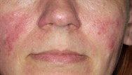 Red cheeks - what's the diagnosis?