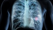 `I've had this cough': lung cancer diagnosis