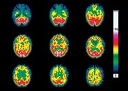 Huntington's disease: clinical review