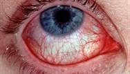 Conjunctivitis and iritis: differential diagnosis