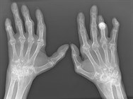Scans and X-rays: illustrated