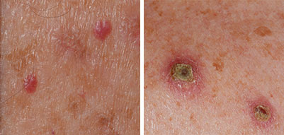skin cancer a p case study Assessing malignant melanoma: a case study skin examination showed an 8 mm malignant melanoma is the fastest-growing and 7th most frequent cancer in.