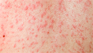 Measles: clinical review