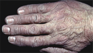 Hand rashes: differential diagnosis