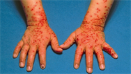 Diagnosing blistering skin conditions