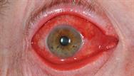 Eye disorders: illustrated