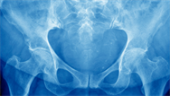 Osteoarthritis: clinical review