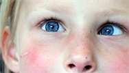 Strabismus in childhood