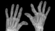 Rheumatoid arthritis: clinical review