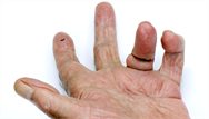 Restricted finger movement - what's the diagnosis?
