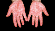 Skin conditions in young children
