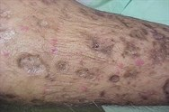 Non-infective skin disorders in HIV patients