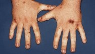 Dermatological emergencies in primary care