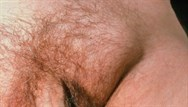 Groin swelling - red flag symptoms