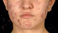 Acne vulgaris: clinical review