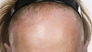 Recognition of frontal fibrosing alopecia