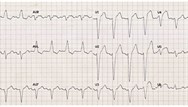 ECG acquisition and interpretation in primary care: introduction