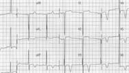 Analysing ECGs in primary care