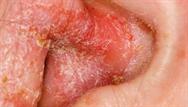 Acute otitis externa: clinical review