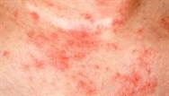 Dermatology Insights: Management of eczema