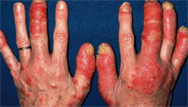 Psoriasis: diagnosis and individualised therapy