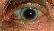 Test your diagnostic skills with 10 clinical pictures: Quiz 3