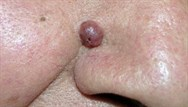 A lesion on the nose - what's the diagnosis?