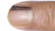 A discoloured nail - what's the diagnosis?