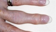 Painful and swollen fingers - what's the diagnosis?