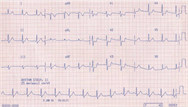 The ECG in ischaemia