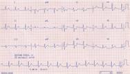 The ECG in ischaemia