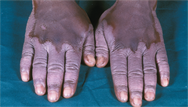 Dermatological conditions in pigmented skin