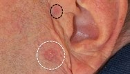 Basal cell carcinoma: clinical review