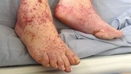 Skin problems in haematological disease