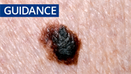 Guidance update: latest NICE guidelines on melanoma