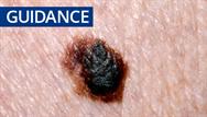 Guidance update: latest NICE guidelines on melanoma