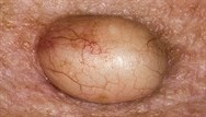 Test your knowledge of dermatology: March 2018