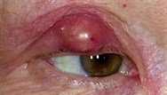 Cysts: differential diagnosis