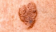Skin cancer: risk factors and identification