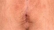 Vulval lichen sclerosus